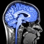 pennsylvania traumatic brain injury attorneys nj