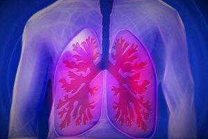 ventilator-cancer-lawsuit-attorney